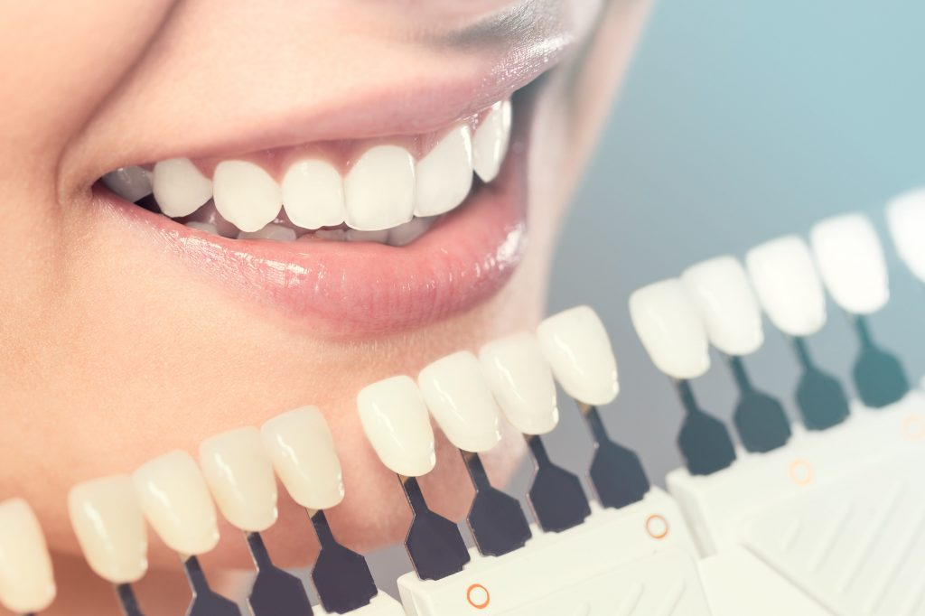 Things To Look In A Cosmetic Dentist Before Visiting In Alexandria